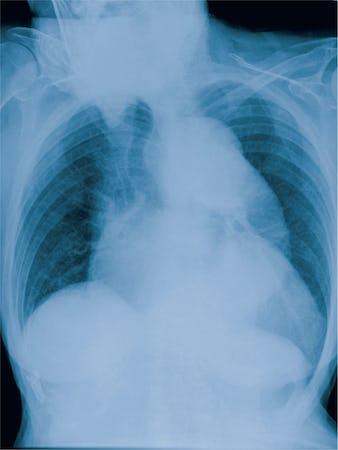 Anevrismul de aorta - Cauze, simptome și tratament