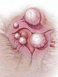 Fibromul uterin - tipuri , cauze, simptome, tratament