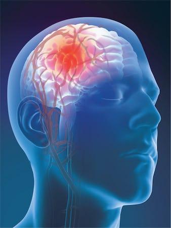 Anevrismul cerebral - cauze, simptome, tratament