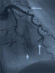Fistula arterio-venoasă coronariană - cauze, simptome, tratament