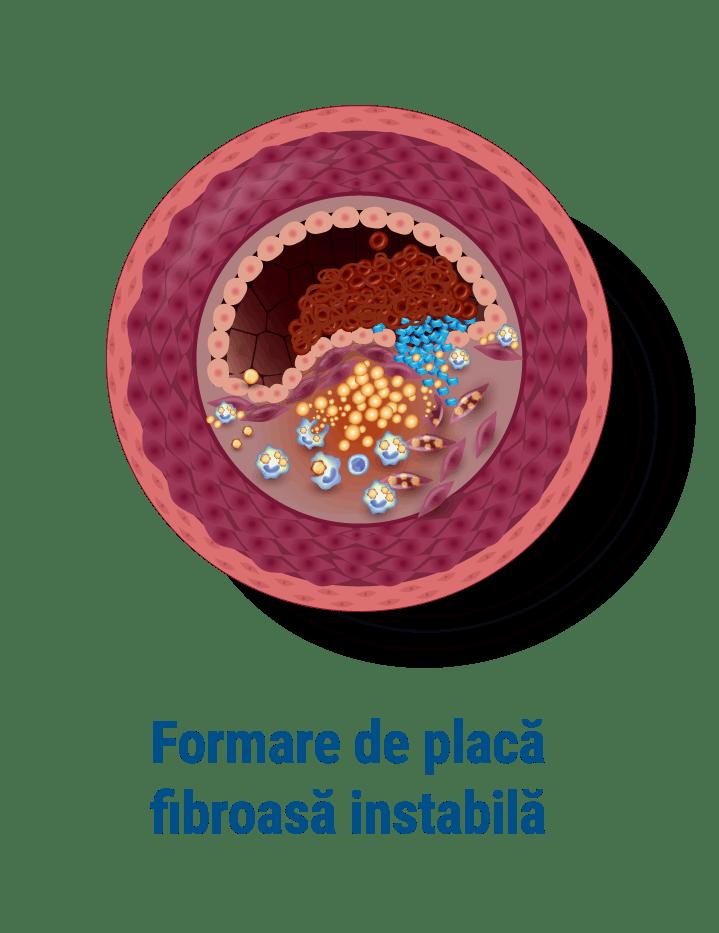 Formare de placa fibroasa instabila
