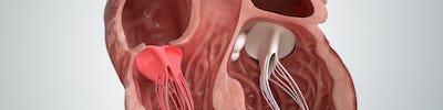 Chirurgia valvei mitrale | ARES
