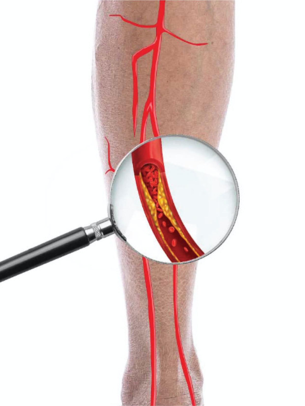 Boala arterială periferică - Cauze, simptome și tratament