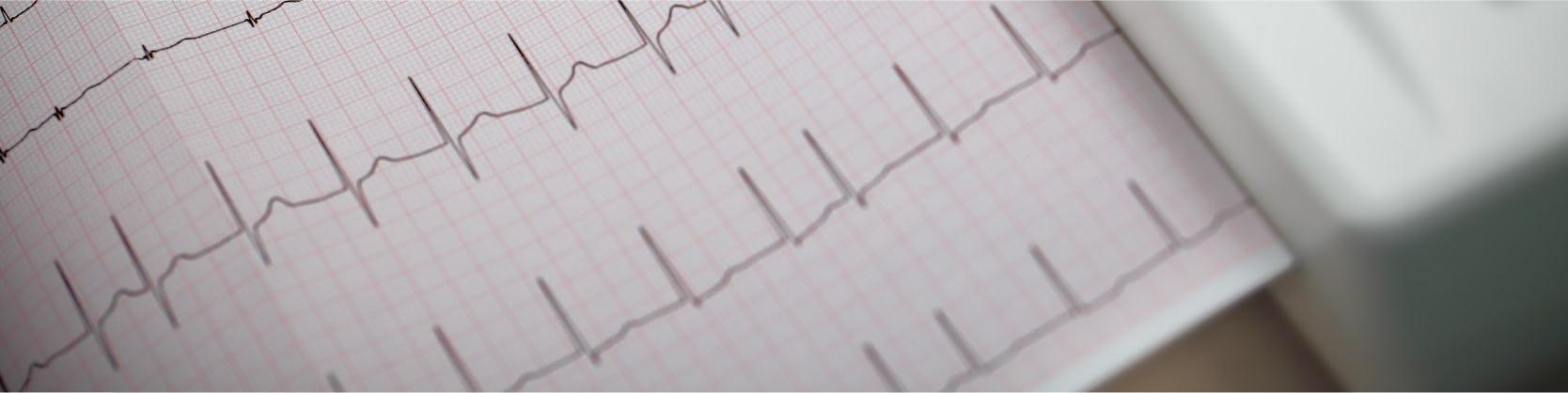 Electrocardiografie - ECG / EKG  | Centrele Ares | Inovatie in Cardiologie