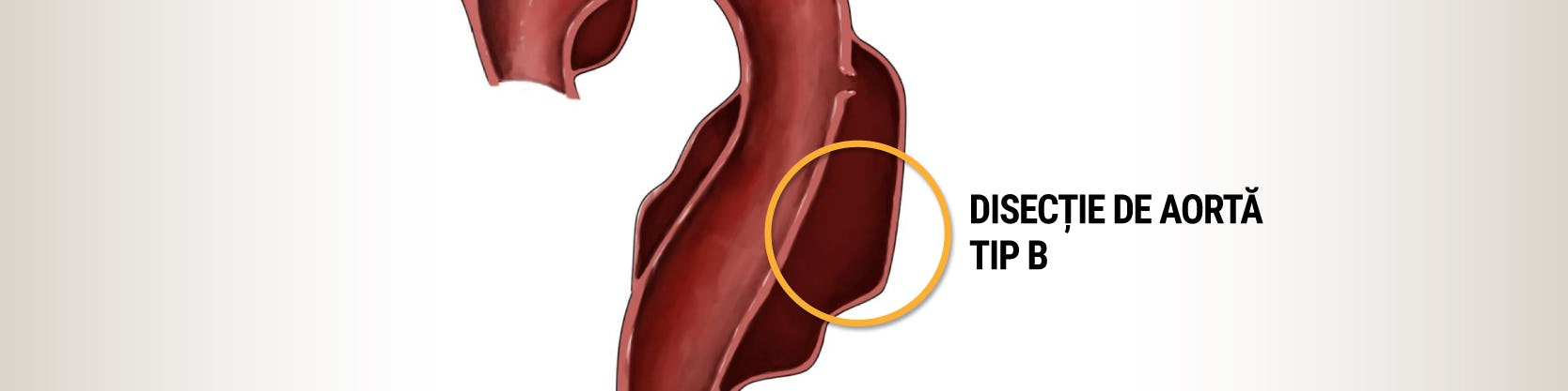 Implantare de stent graft - Disecție de aortă de tip B | Tratament minim invaziv | Centrele Ares
