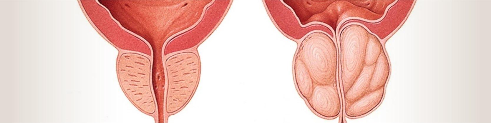 Embolizarea de adenom de prostata | Centrele Ares | Gentleman