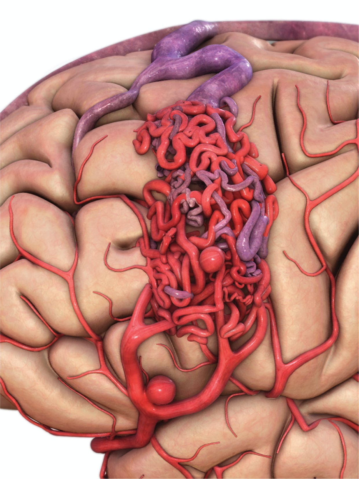 Malformații arterio-venoase cerebrale - cauze, simptome, tratament