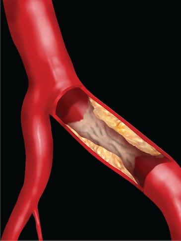 Boala care îngroașă arterele inimii. Cum previi ateroscleroza?