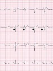 Sindromul WPW (wolf-parkinson-white) - cauze, simptome și tratament