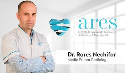 ARES | Pastila de sănătate | Dr. Rareș Nechifor, medic radiolog intervenționist în cadrul Centrelor de Excelență Ares