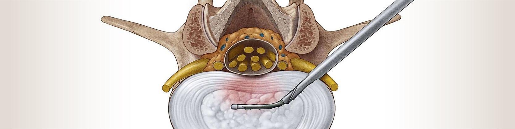 Tratament hernie de disc   Centrele Ares   Neuroradiologie interventionala