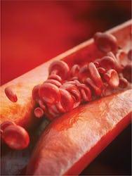 Ateroscleroza - cauze, simptome și tratament