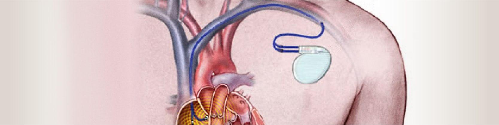 Implantare Defibrilator cardiac - Centrele ARES | Inovatie in Cardiologie