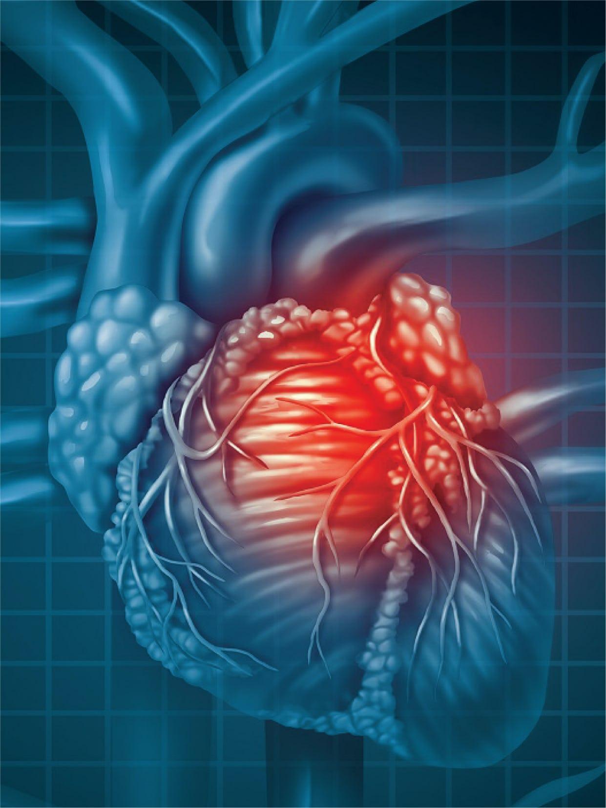 Boala coronariană cronică (stabila) - cauze, simptome, tratament