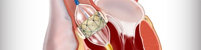 Tratamentul stenozei aortice - TAVI - indicatii, procedura, riscuri | Centrele Ares | Inovatie in Cardiologie
