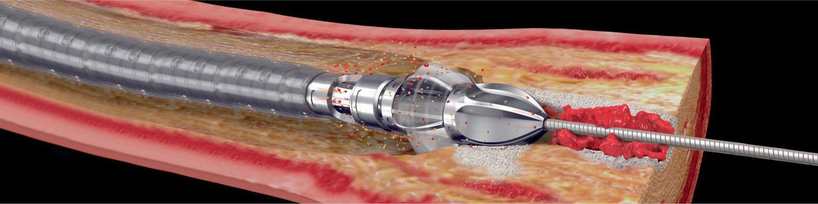 Procedura JetStream – sistem de aterectomie pentru dezobstrucția arterelor sever calcifiate