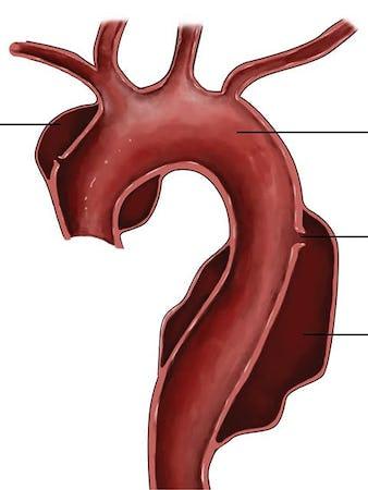 Disecția de aortă – cauze, simptome, tratament