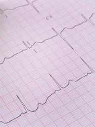 Aritmii cardiace - cauze, simptome, tratament