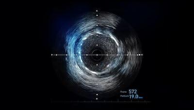 Ultrasonografia intravasculară se face la ARES - IVUS