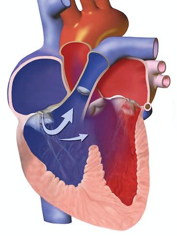 Malformații cardiace congenitale. Ghid pentru părinți: Ce sunt, cum le recunoaștem și de ce apar