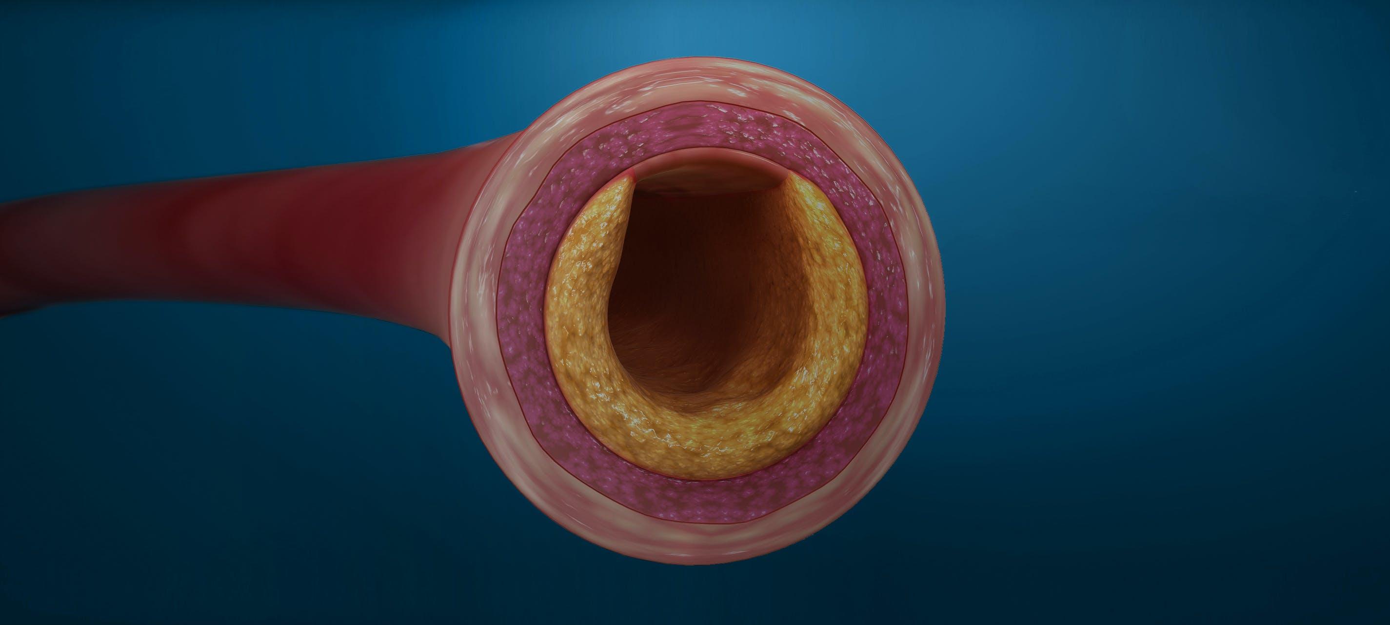 Centrul de excelenta ares adenom de prostata