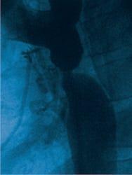 Coarctația de aortă - cauze, simptome, tratament