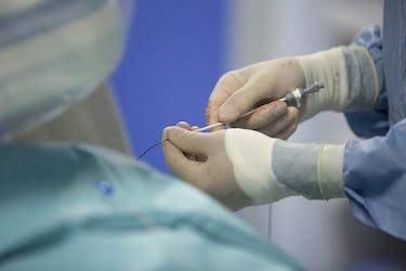Nou în Constanța: Pacienții cu flutter atrial pot fi tratați prin ablație cu radiofrecvență la ARES