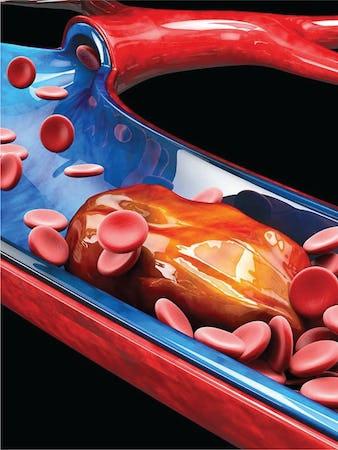 Tromboza venoasă - Cauze, simptome, tratament