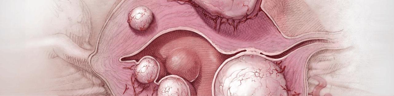 Embolizare fibrom uterin /Tratament minim invaziv fibrom uterin