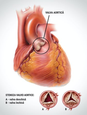 Stenoza aortică – cauze, simptome, tratament