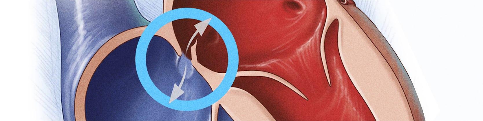 Corectia Foramen Ovale Patent (PFO) | Centrele Ares | Inovatie in Cardiologie