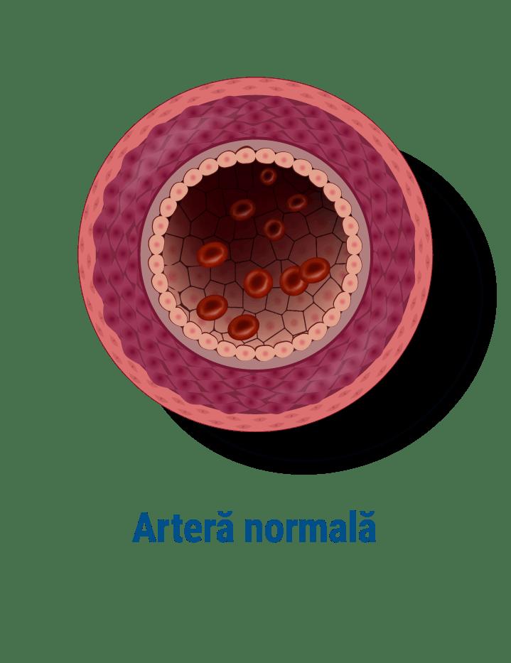 Artera normala fara stenoze
