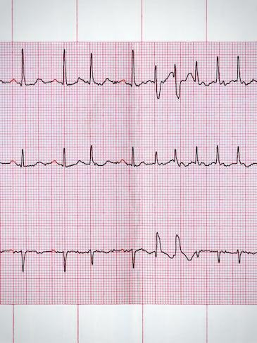 Fibrilatia atriala, printre cele mai frecvente aritmii cardiace. Simptome si tratament