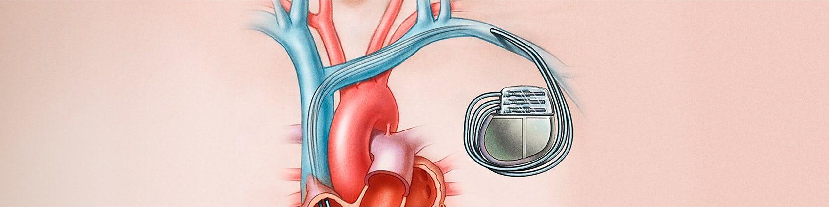 Implantare stimulator cardiac - Centrele Ares - Inovatie in Cardiologie