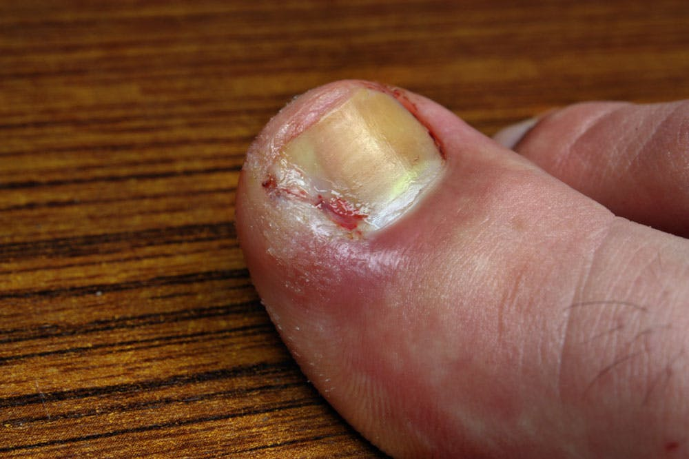 Ingrown Toe-nail photo