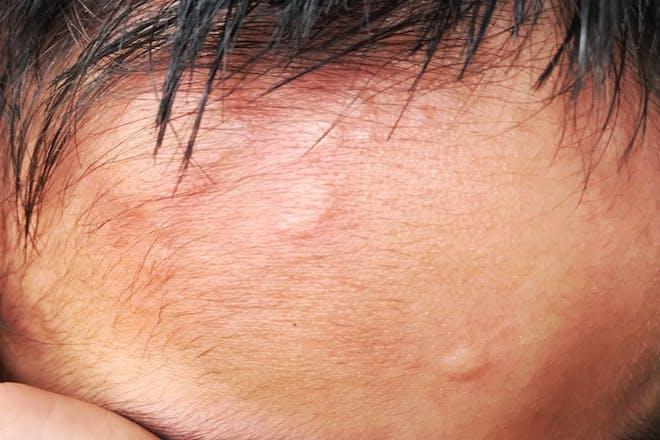 urticaria rash
