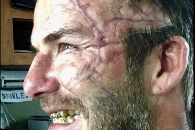 David Beckham scar