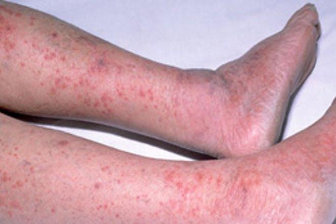 1. Meningitis rash