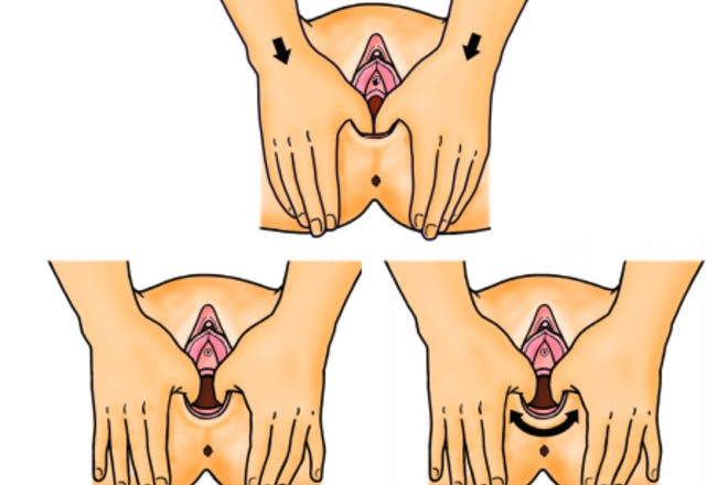 Illustration showing techniques for perineal massage