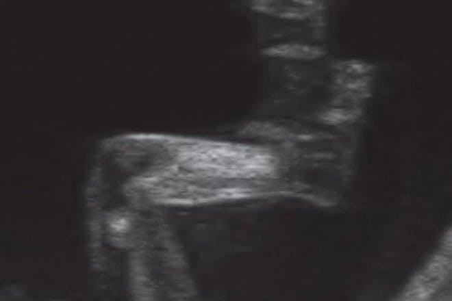 11 weeks pregnant scan