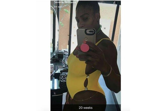 Serena Williams pregnant