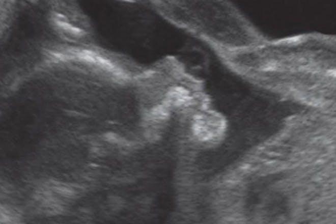 22 weeks pregnant scan