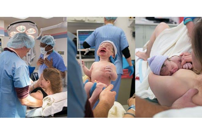 Breech birth 8