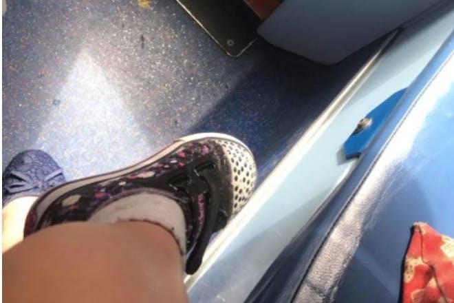 Child burnt leg on bus