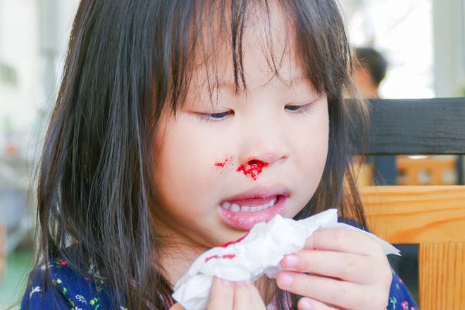 3. FIRST AID MYTH: Tip your head back if you have a nosebleed