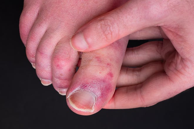 'Covid toes' - toes with purple blotches on them
