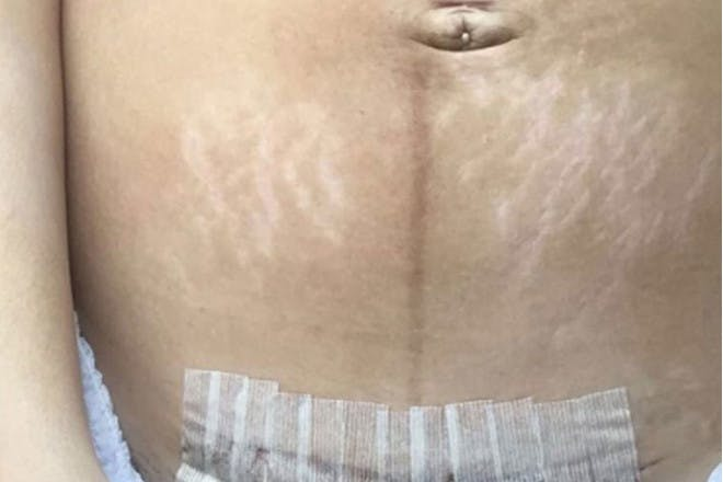 Postpartum body with c-section scar