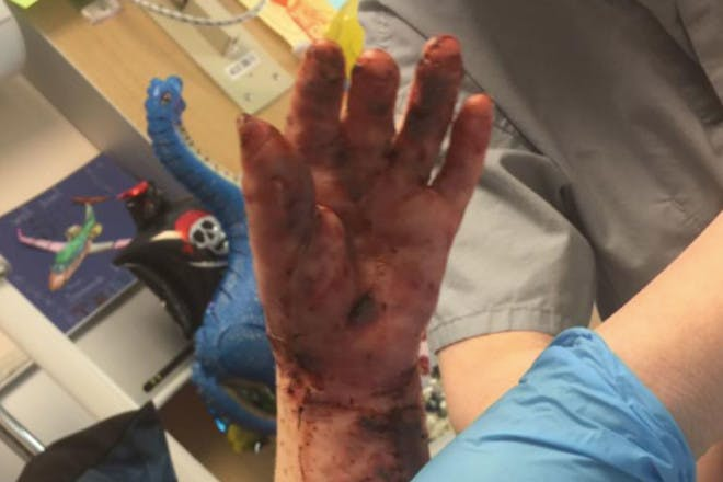 toddler hand with third-degree burns
