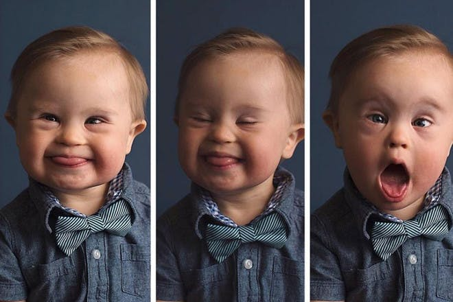 Model toddler with Down's syndrome