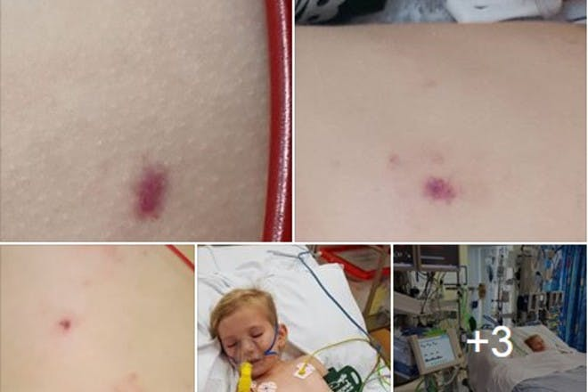 meningitis rash pictures tim dawson
